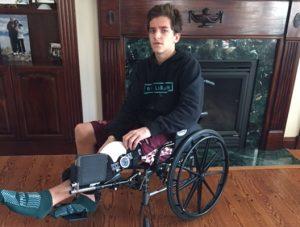 DeSousa - Broken Leg