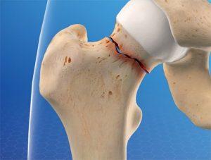 Patricia - Broken Leg/Hip