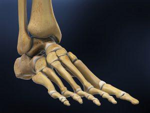 Kathleen - Broken Ankle